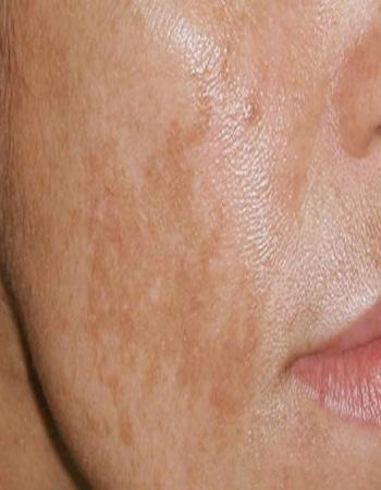 Hyperpigmentation: Qu'est-ce qui provoque l'assombrissement de la peau?