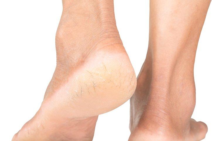 Comment adoucir les talons de pieds ?