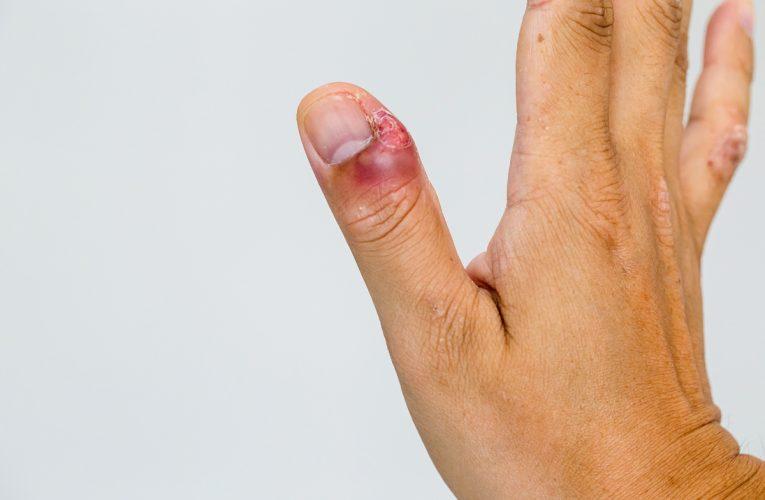 Cuticule: Qu'est-ce que c'est, soins, élimination, signes d'infection et plus encore?