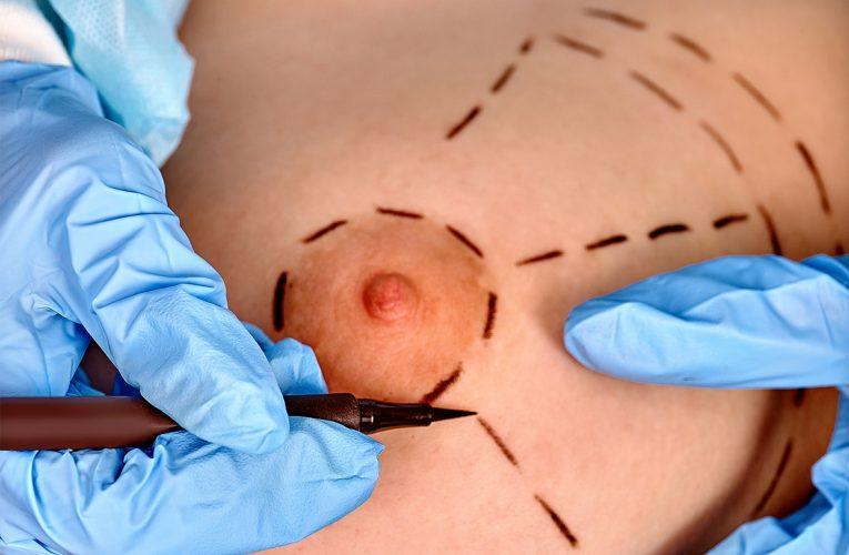 Principales interventions de la chirurgie des seins